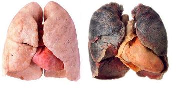 tobakk-skadelig-image